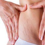 Striae en littekens na de bevalling