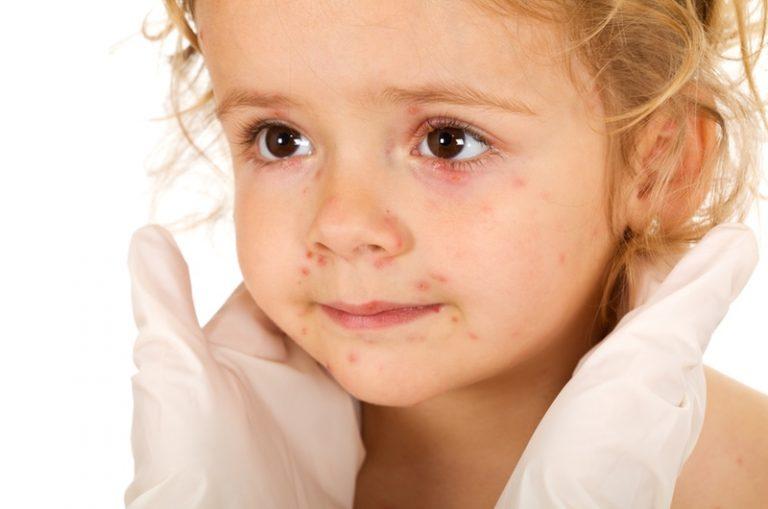 Mijn Kind Heeft Waterpokken Zwangerschapspagina